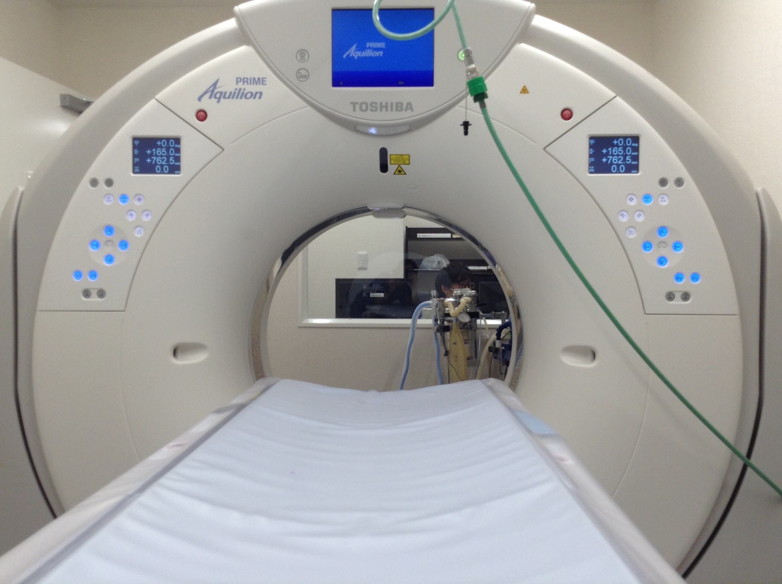 東芝80列CT装置 Aquilion